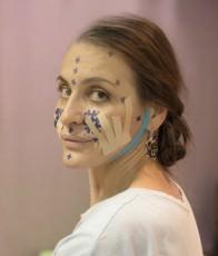 Тейпирование при неврите лицевого нерва