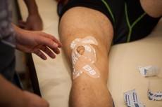 Тейпирование колена при болях