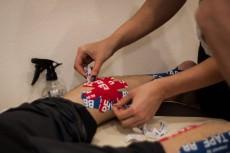 Тейпирование голеностопного сустава при артрозе
