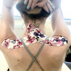 Тейпирование плеча при растяжении