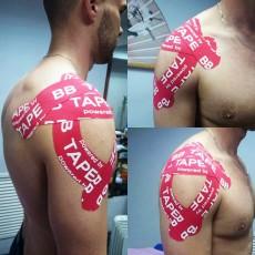 Кинезио тейпирование при вывихах и растяжениях плеча