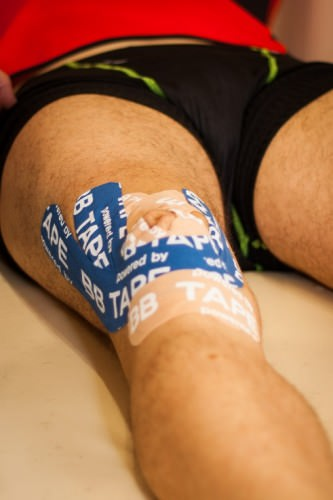 тейпирование коленного сустава при растяжении связок